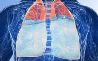 Инфаркт легкого: провоцирующие факторы, клинические проявления, методы обследования и лечения