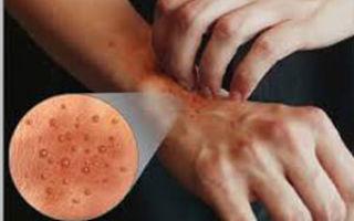 Буллезный дерматит: что это, симптомы и лечение в домашних условиях