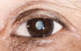 Белая точка, пятно на радужке глаза: причины появления, методы обследования и особенности лечения
