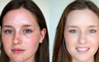 Как избавиться от просянки: лечение и удаление милиумов на лице