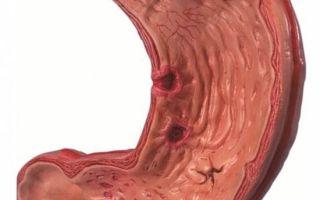 Боровая матка: общие сведения о лекарственном растении, показания, противопоказания и применение для лечения гинекологических заболеваний