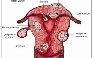 Гистерэктомия матки в гинекологии: показания и противопоказания, послеоперационный период, возможные последствия