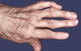 Воспаление суставов пальцев рук и ног: основные причины, типичные симптомы, методы терапии и профилактика