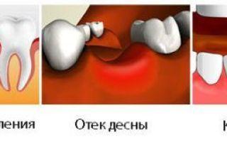 Осложнения после удаления зуба: сухая лунка, воспалительные процессы, медицинский контроль и лечение