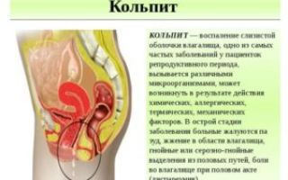 Кольпит — причины возникновения, виды и лечение заболевания