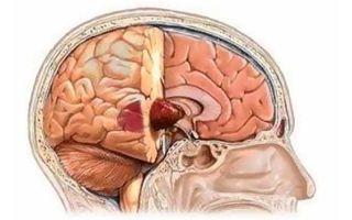 Опухоль головного мозга: симптомы, лечение, удаление