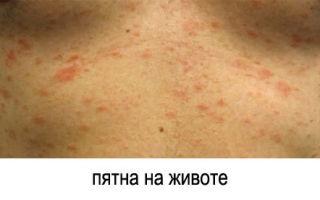 Розовый лишай у человека: причины развития, характерные симптомы и методы лечения с подробными фото