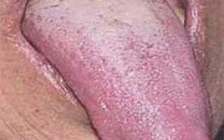 Причины сухости во рту: причина появления симптома, диагностика нарушений иихлечение