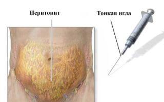 Перитонит: что это такое, симптомы заболевания, лечение и послеоперационный уход