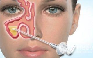 Синусит (sinusitis): причины возникновения, как проявляется и диагностируется