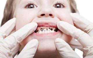 Почему темнеют зубы у взрослых: причины потемнения и методы отбеливания эмали