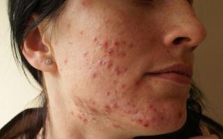 Демодекоз: разновидности заболевания, его причины и методы лечения в домашних условиях