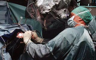 Аневризма аорты: механизм развития, клинические признаки, методы обследований и лечения