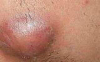 Актиномикоз: особенности и локализация воспалений, симптомы и причины заболевания, возможные методы терапии