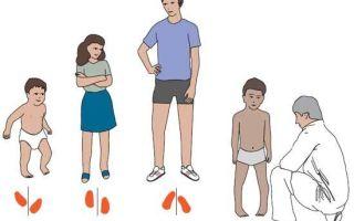 Как лечить деформацию стопы и голени у ребенка