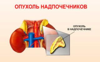 Опухоли надпочечников: причины развития, сопутствующие симптомы, принципы лечения, операция по удалению