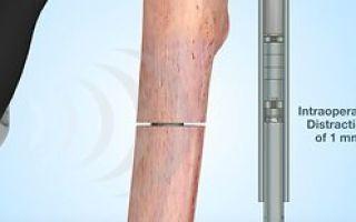Абсцесс мягких тканей конечностей: причины возникновения, характерные признаки, диагностика и способы лечения