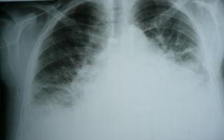 Сердечная недостаточность: симптомы и лечение, диагностика