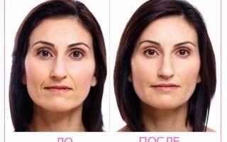 LPG (ЛПГ)-массаж для лица и тела: противопоказания, фото до и после процедуры