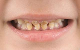 Бутылочный кариес у детей: провоцирующие факторы, клиническая картина, лечебные и профилактические меры