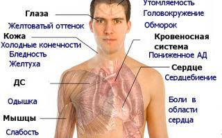 B12-дефицитная анемия: причины развития, сопутствующие симптомы, лечебные и профилактические меры