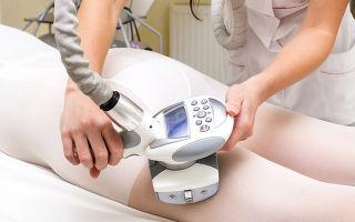 Безоперационная липосакция: виды процедур, преимущества и недостатки, особенности процесса