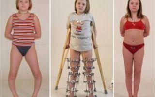 Ложный сустав после перелома: причины формирования, характерные признаки, методы обследования и принципы лечения
