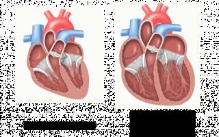 Алкогольная кардиомиопатия: стадии развития, характерные проявления, подходы к лечению