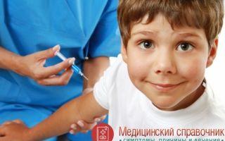 Токсокароз: основные симптомы и методы лечения заболевания, анализ у детей и взрослых, профилактика заражения