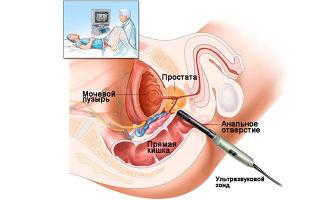 Причины отсутствия эякуляции и как лечится анэякуляция?