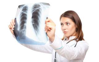 Сухой плеврит: провоцирующие факторы, клинические симптомы, лечебная тактика и меры профилактики
