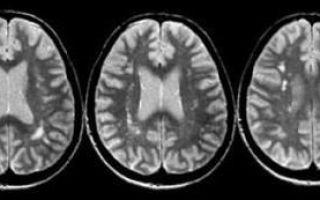 Рассеянный склероз — причины возникновения, симптомы, методы диагностики