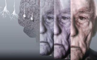 Старческая деменция: причины развития, первые признаки и специфические симптомы, методы лечения слабоумия