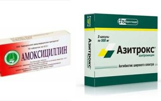 Бронхит у взрослых: специфические симптомы, методы диагностики и лечения