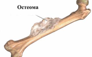 Эностоз бедренной кости: описание патологии и современные способы терапии заболевания