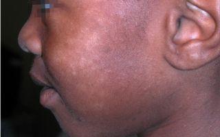 Блестящий лишай: провоцирующие факторы, типичные проявления, диагностика и медикаментозная терапия