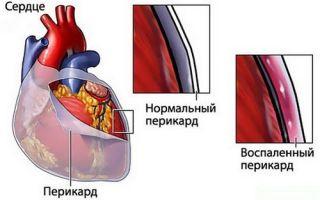 Ревмокардит: причины возникновения и признаки заболевания, методы терапии различных форм миокардита