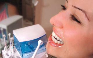 Зубной камень: провоцирующие факторы, симптомы появления, методы удаления в стоматологии и в домашних условиях