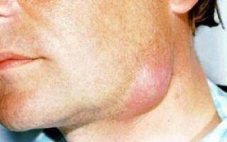 Увеличение, воспаление лимфоузлов на шее, под челюстью: частые причины и методы лечения
