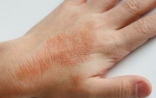 Аллергия на плесень: причины развития, характерные проявления, способы лечения и меры профилактики
