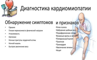 Гипертрофическая кардиомиопатия: причины патологии, характерные признаки, способы лечения и возможные осложнения