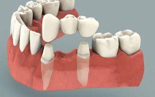 Зубные протезы при полном или частичном отсутствии зубов: разновидности конструкций, их плюсы и минусы, процесс установки, правила ухода