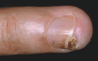 Кератоакантома кожи: причины развития, характерные симптомы, методы лечения и прогноз