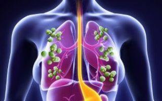 Аллергический бронхолегочный аспергиллез: провоцирующие факторы, клинические проявления, диагностика и тактика лечения