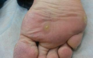 Что такое шипица и как от нее избавиться: удаление шипицы салиподом