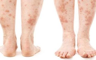 Псориаз: причины, клинические признаки, лечение и профилактика заболевания