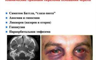 Перелом основания черепа: факторы риска, клиническая картина, первая помощь, методы лечения и прогноз