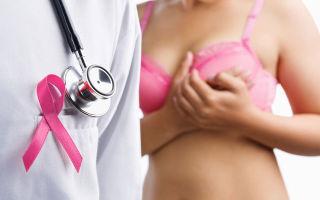 Саркома молочной железы: механизм развития, типичные симптомы, особенности лечения и профилактика