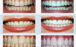 Профессиональное отбеливание зубов zoom 3 и zoom 4: в чем разница?