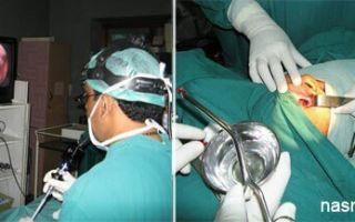 Киста челюсти, челюстной пазухи: причины и классификация образований, клиническая картина, способы лечения